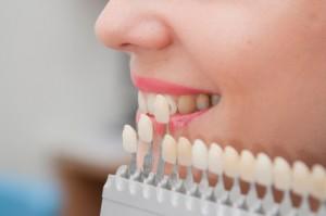 Dentist North Hollywood - Porcelain Veneer