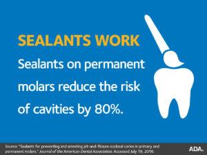 Dental Sealants - Dentist North Hollywood