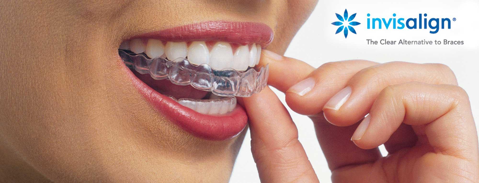 Invisalign Modern Smiles Dentistry North Hollywood
