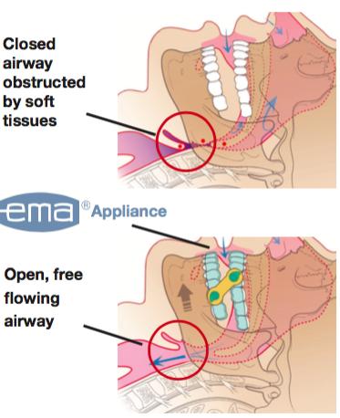 Dental Sleep Apena Appliance Modern Smiles