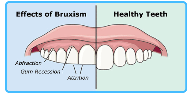 Affects of Bruxism - Dentist North Hollywood