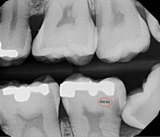 Modern Smiles Dentist North Hollywood - Impacted Wisdom Tooth