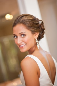 wedding Day Smile Transformation - Dentist North Hollywood