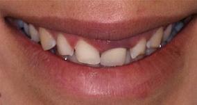 Dentist North Hollywood - Cosmetic Veneer