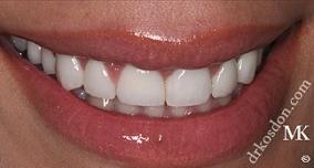 Dentist North Hollywood - Modern Veneers