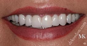 Dentist North Hollywood - Face Lift
