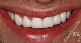 Dentist North Hollywood